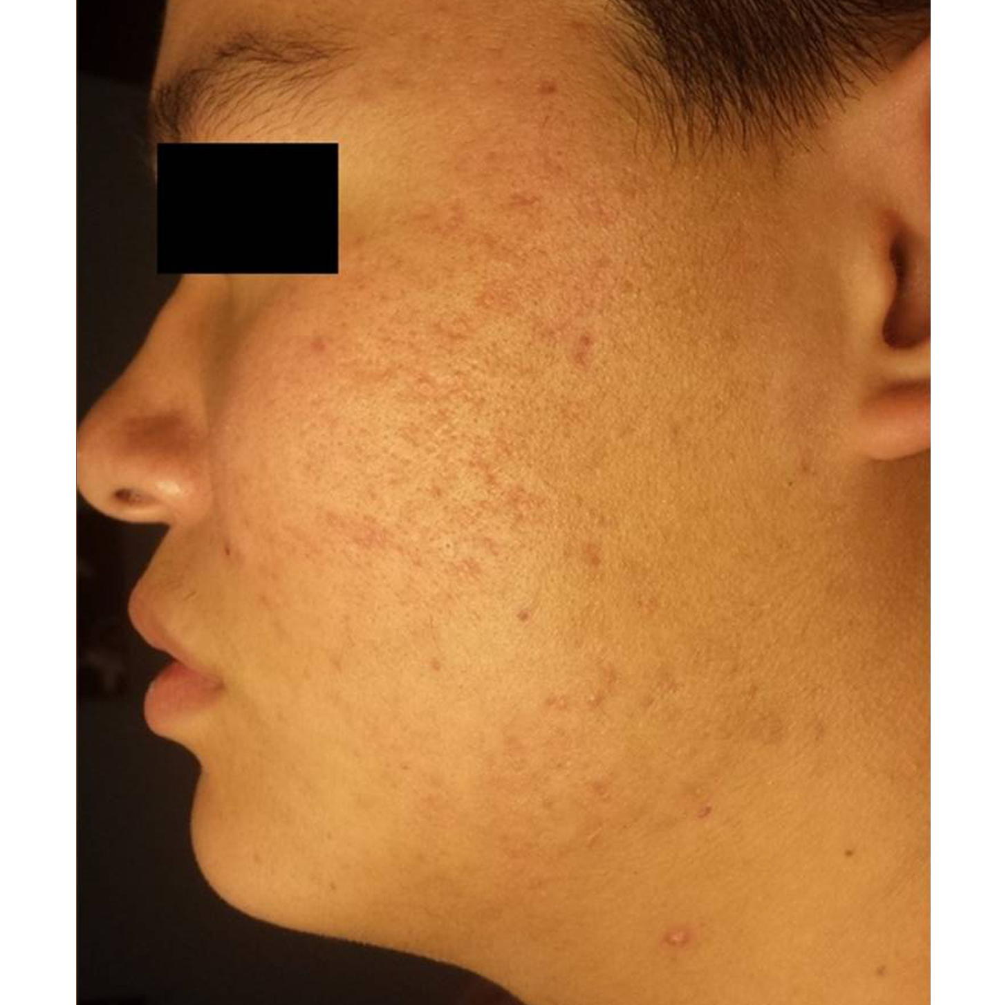 patient with clearer skin after AcneClear Therapy